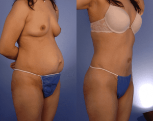 woman before and after hernia surgery